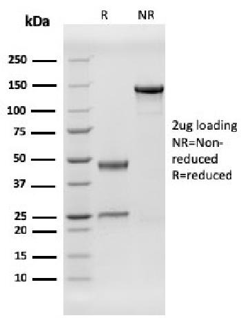 Anti-Human Herpes Virus 8 (HHV8) Monoclonal Antibody(Clone: HHV8/3606)