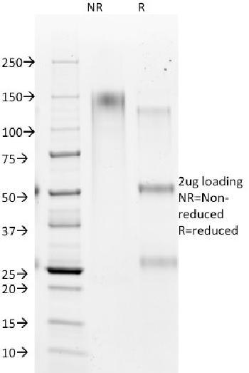 Anti-Hepatocyte Specific Antigen (Hepatocellular Marker) Monoclonal Antibody(Clone: HSA98)