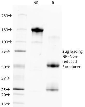 Anti-Hepatocyte Specific Antigen (Hepatocellular Marker) Monoclonal Antibody(Clone: HSA133)