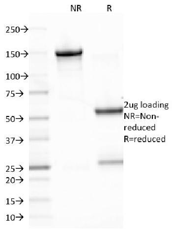 Anti-Epstein-Barr Virus (LMP-1) Monoclonal Antibody(Clone: CS2)