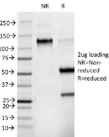 Anti-Phosphotyrosine (P-Tyr) Monoclonal Antibody(Clone: PY265)