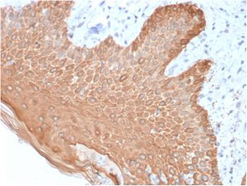 Anti-Cytokeratin, Multi (Epithelial Marker) Monoclonal Antibody(Clone: rKRT/457)