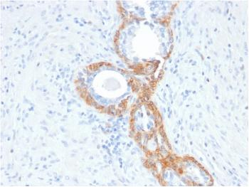 Anti-Cytokeratin, Basic (Type II or HMW) Monoclonal Antibody(Clone: rKRTH/2148)
