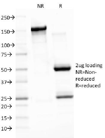 Anti-Epstein-Barr Virus (LMP-1) Monoclonal Antibody(Clone: CS3)