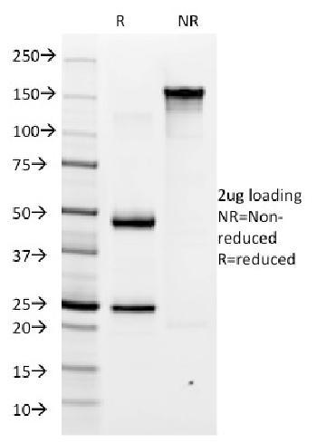 Anti-Helicobacter pylori Monoclonal Antibody(Clone: HP/1335)