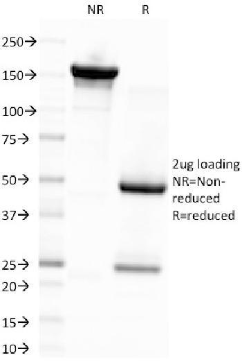 Anti-Epstein-Barr Virus (LMP-1) Monoclonal Antibody(Clone: CS4)
