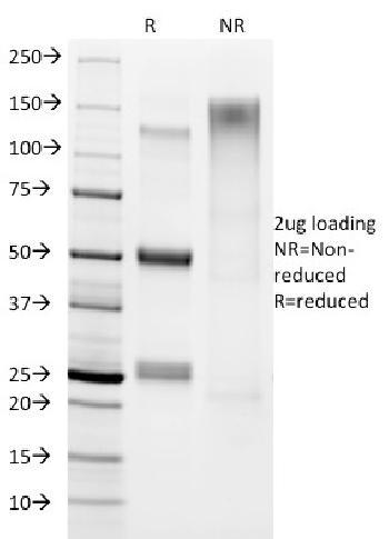 Anti-Helicobacter pylori Monoclonal Antibody(Clone: HP/1336)