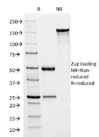 Anti-HSV1 (Herpes Simplex Virus Type I) ICP8 Monoclonal Antibody(Clone: HSVI/2045)