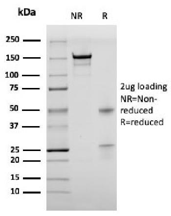 Anti-Bromodeoxyuridine (BrdU) (Proliferation Marker) Monoclonal Antibody(Clone: rBRD469)