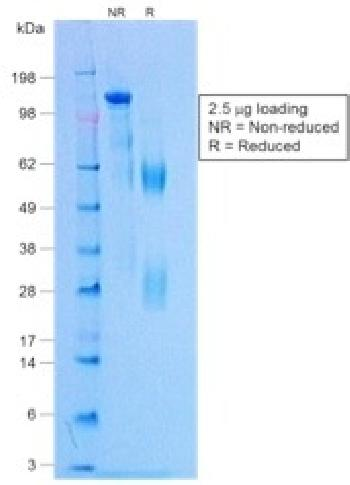 Anti-Negative Control for Rabbit Monoclonal Antibodies Monoclonal Antibody(Clone: NCRBM/1520R)