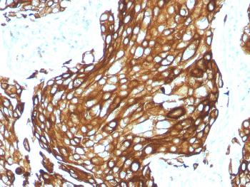 Anti-Cytokeratin, Acidic (Type I or LMW) (Epithelial Marker) Monoclonal Antibody(Clone: KRTL/1577R)