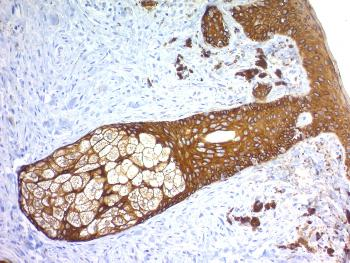 Anti-Cytokeratin, Basic (Type II or HMW) (Epithelial Marker) Monoclonal Antibody(Clone: KRTH/1576R)
