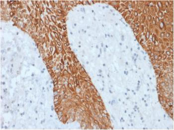 Anti-Cytokeratin, Multi (Epithelial Marker) Monoclonal Antibody(Clone: KRT/1877R)