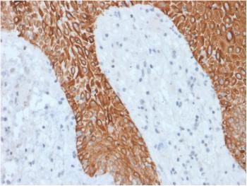 Anti-Cytokeratin, Multi (Epithelial Marker) Monoclonal Antibody(Clone: KRT/1877R)