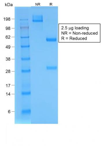 Anti-Bromodeoxyuridine (BrdU) (Proliferation Marker) Monoclonal Antibody(Clone: BRD/1539R)