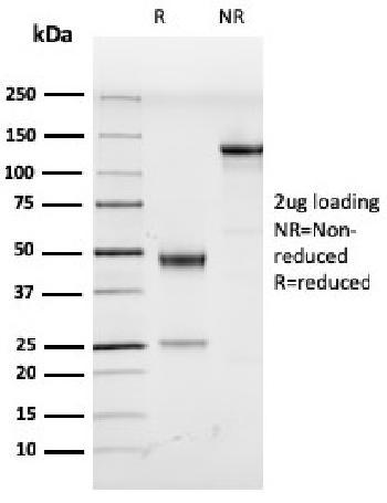Anti-Human Herpes Virus 8 (HHV8) Monoclonal Antibody(Clone: LN53)