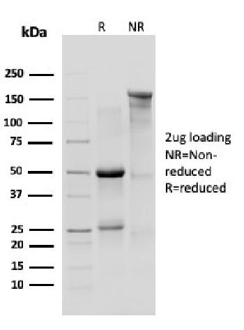 Anti-IL-10R1, Mouse (Interleukin-10 Receptor 1) (CD210) Monoclonal Antibody(Clone: 1B1.3a)