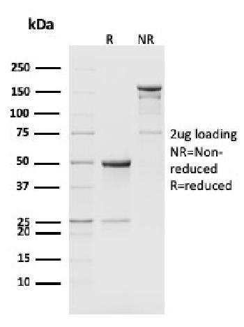 Anti-CD8b, Mouse Monoclonal Antibody(Clone: H35-17.2)