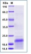 Human HER2 / ErbB2 Recombinant Protein (ECD, domain II) (His Tag)