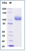 Human ACE2 / Angiotensin-Converting Enzyme 2 Recombinant Protein (His Tag)