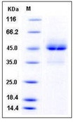 Human TRAIL R1 / CD261 / TNFRSF10A Recombinant Protein (Fc Tag)