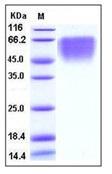 Human CD86 / B7-2 Recombinant Protein (His Tag)