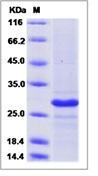 Human CD20 / MS4A1 Recombinant Protein (TrxA Tag)
