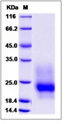 Mouse GM-CSF / CSF2 Recombinant Protein (His Tag)