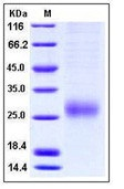 Human ALK-1 / ACVRL1 Recombinant Protein (His Tag)