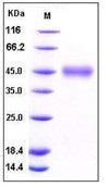 Human CD84 Recombinant Protein (His Tag)