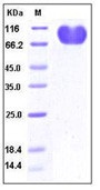 Human CD155 / PVR / NECL5 Recombinant Protein (Fc Tag)