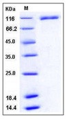 Human VCAM-1 / CD106 Recombinant Protein (His Tag)