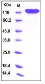Human CD146 / MCAM Recombinant Protein (Fc Tag)