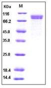 Human Cadherin-8 / CDH8 Recombinant Protein (His Tag)