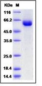 Human tPA / PLAT Recombinant Protein (Fc Tag)