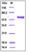 Human Cystatin 7 / CST7 Recombinant Protein (Fc Tag)
