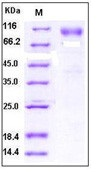 Human DR6 / TNFRSF21 Recombinant Protein (Fc Tag)