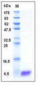 Human S100A2 Recombinant Protein
