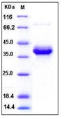 Human S100A4 Recombinant Protein (Fc Tag)