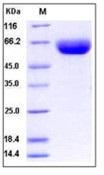 Human CD147 / EMMPRIN / Basigin Recombinant Protein (Fc Tag)