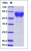 Human FAS / CD95 / APO-1 / TNFRSF6 Recombinant Protein (Fc Tag)