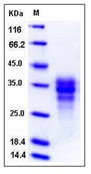 Human FAS / CD95 / APO-1 / TNFRSF6 Recombinant Protein (His Tag)