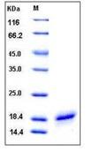 Human CD40L / CD154 / TNFSF5 Recombinant Protein (His Tag)