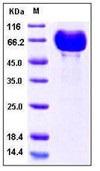 Human B7-DC / PD-L2 / CD273 Recombinant Protein (His & Fc Tag)