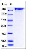 Human Leptin Receptor / LEPR / CD295 Recombinant Protein (His Tag)
