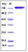 Human Alkaline Phosphatase / ALPL Recombinant Protein (His Tag)