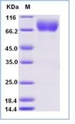 Human CD226 Recombinant Protein (Fc Tag)