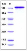 Human IGF1 / IGF-I Recombinant Protein