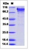 Human N-Cadherin / CD325 / CDH2 Recombinant Protein (ECD, His Tag)