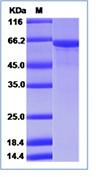 Human HSP70 / HSPA1A Recombinant Protein (His Tag)